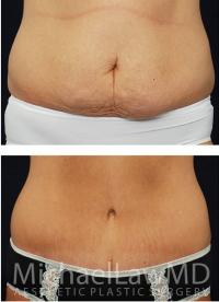 Tummy Tuck Scars